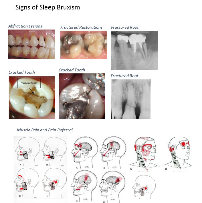 Health - Bruxism, Research Paper